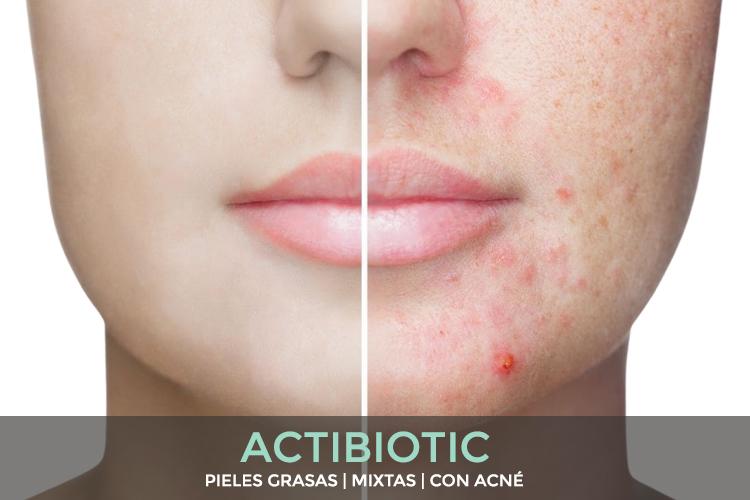 ERICSON LABORATOIRE - Actibiotic tratamiento para pieles grasas, pieles mixtas y pieles con acné